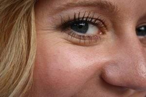 wrinkles under the eyes of the girl